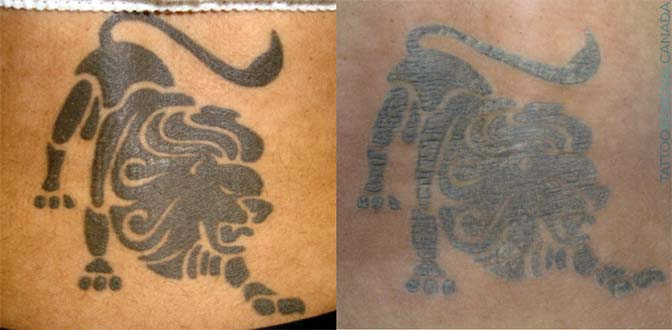 After one session of laser tattoo removal